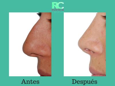 rinoplastia cirugía de la nariz