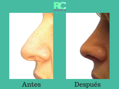 operación de nariz rinoplastia