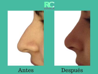 nariz operada antes y despues
