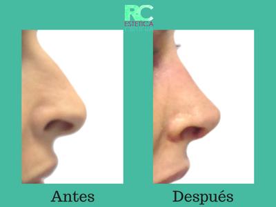 rinoplatia antes y despues